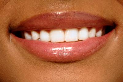 Auch gelbe Zähne können wieder strahlend weiß werden.