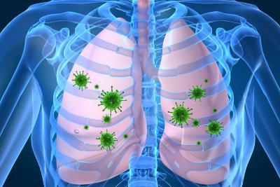 Die Lungenentzündung ist eine Erkrankung des Lungengewebes.