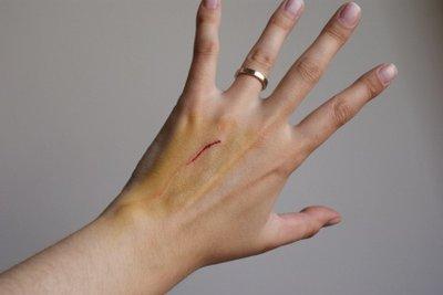 Auch kleine Narben benötigen eine gute Narbenbehandlung. Narbencreme kann hier eine wichtige Rolle spielen.