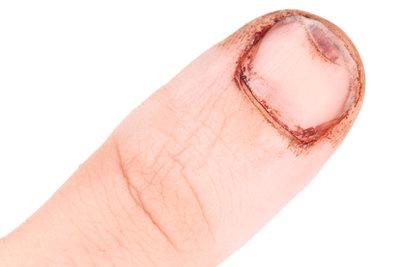 Nagelbettentzündung - eine schmerzhafte Angelegenheit.