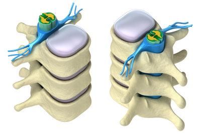 Bei einer Bandscheibenprotrusion können die Nervenwurzeln (hier blau) geschädigt werden.