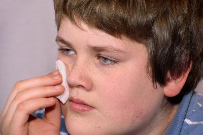 Herpes im und am Mund ist nur am Anfang gut mit Hausmitteln zu bekämpfen.