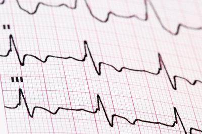 Das EKG unterstützt die Diagnosefindung bei Atemnot im Liegen.