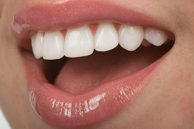Gegen trockene Lippen können viele Mittel helfen.