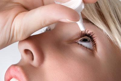 Augentropfen helfen symptomatisch bei trockenen Augen.