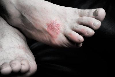 Schuppenflechte kann am ganzen Körper auftreten.