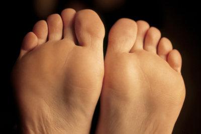 Dornwarzen an den Fußsohlen können Sie dauerhaft entfernen.
