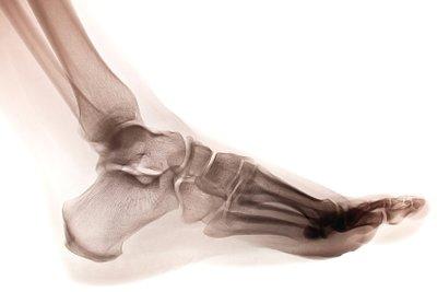 Ein Fuß ist kein Klotz, sondern ein Wunderwerk unseres Bewegungsapparats. Ein guter Schuh sollte dazu passen.