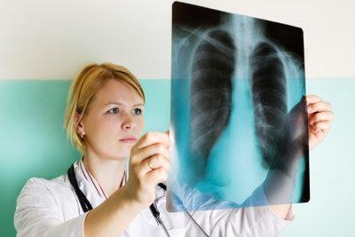 Auch eine leichte Lungenentzündung sollte von einem Arzt behandelt werden.