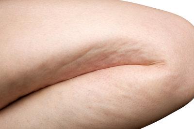 Cellulite können Sie einfach wegcremen.