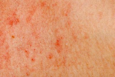 Juckende Haut ist sehr unangenehm.
