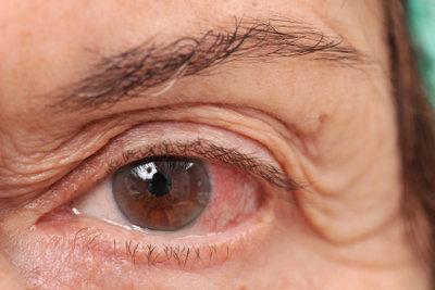 Augentropfen besser ohne Kontaktlinsen verwenden.
