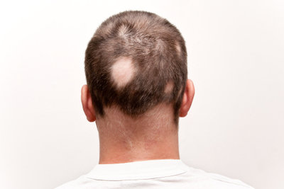 Hausmittel können den Haarausfall stoppen.
