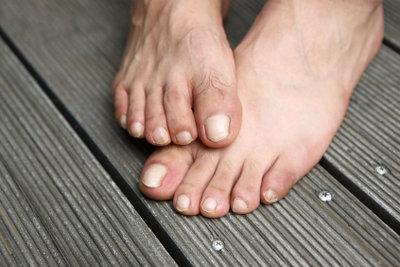 Eingeschlafene Füße können schmerzen.
