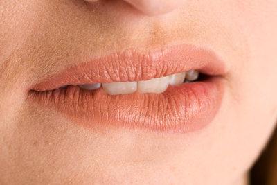 Eine Mundwinkelentzündung ist unangenehm.