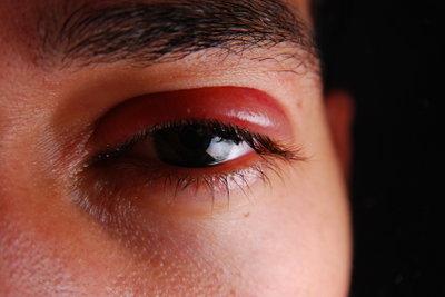Geschwollene Augen können verschiedene Ursachen haben.
