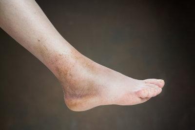Bei Thrombose im Bein richtig verhalten.