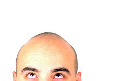 Plötzlicher Haarausfall kann mehrere Gründe haben.