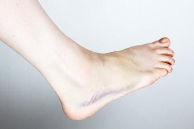 Eine Schwellung am Bein?