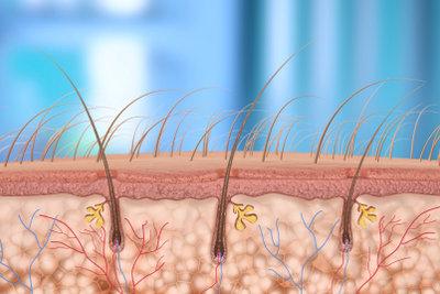 Haarwurzeln können sich entzünden.