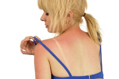 Ohne die richtige Behandlung wird der Strandurlaub für Sonnenallergiker zur Qual.