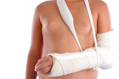 Verletzungen und Operationen können Ursachen für eine Wassereinlagerung im Körper sein.