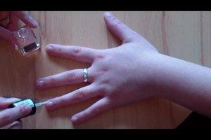 Abgekaute Fingernägel - das hilft beim Wachsen