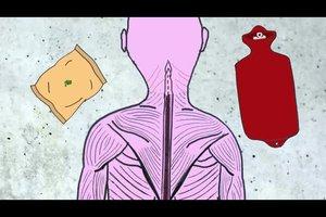 Nacken verrenkt - so werden Sie die Schmerzen schnell wieder los