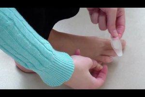 Offene Blasen an den Füßen schneller abheilen lassen - so könnte es klappen