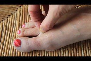 Haut löst sich an Füßen - was tun?