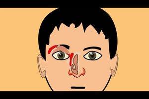 Warum tränen die Augen bei Schnupfen?