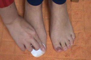 So werden verfärbte Fußnägel wieder schön