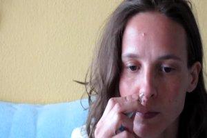 Pickel in der Nase - was hilft dagegen?