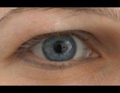 Augenfarbe ändert Sich