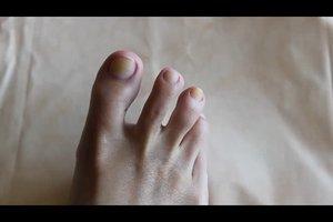 Was tun gegen gelbe Fußnägel? - So werden sie wieder hell
