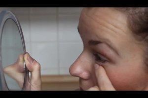 Kontaktlinse geht nicht raus - so gelingt's