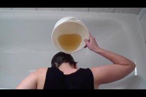 Pickel auf Kopfhaut - das können Sie tun